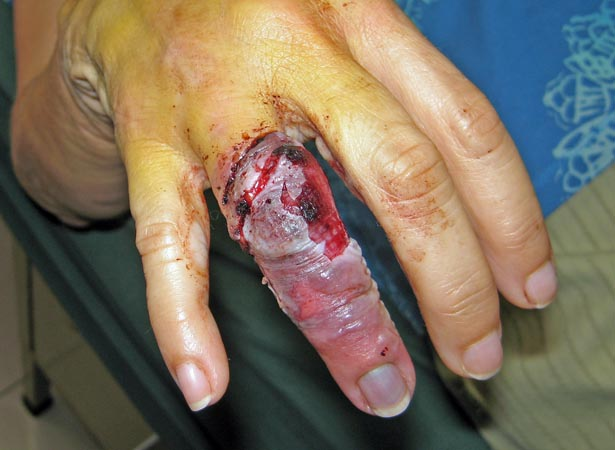 A week later, finger -although ghastly, is looking better. Antigua, Guatemala